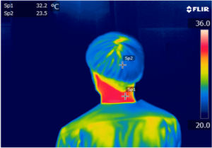 拭く前:首元温度32.2℃